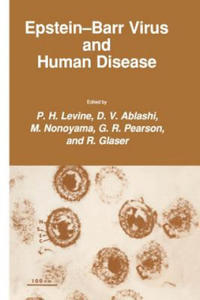 Epstein-Barr Virus and Human Disease - 2856490187