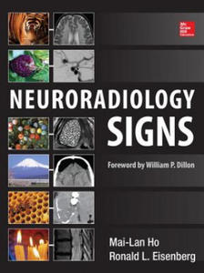 Neuroradiology Signs - 2854191780