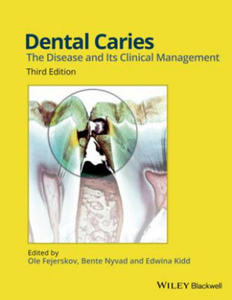 Dental Caries - 2906830471
