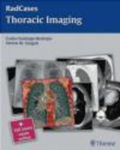 Thoracic Imaging - 2822223678