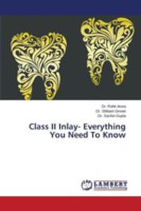 Class II Inlay- Everything You Need To Know - 2857267335
