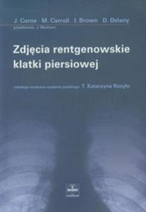 ZDJĘCIE RENTGENOWSKIE KLATKI PIERSIOWEJ 0,3/ CZELEJ - 2853445077